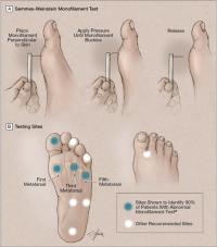 Pédicure et podologie des patients diabétiques ( grade 0 au grade 3)